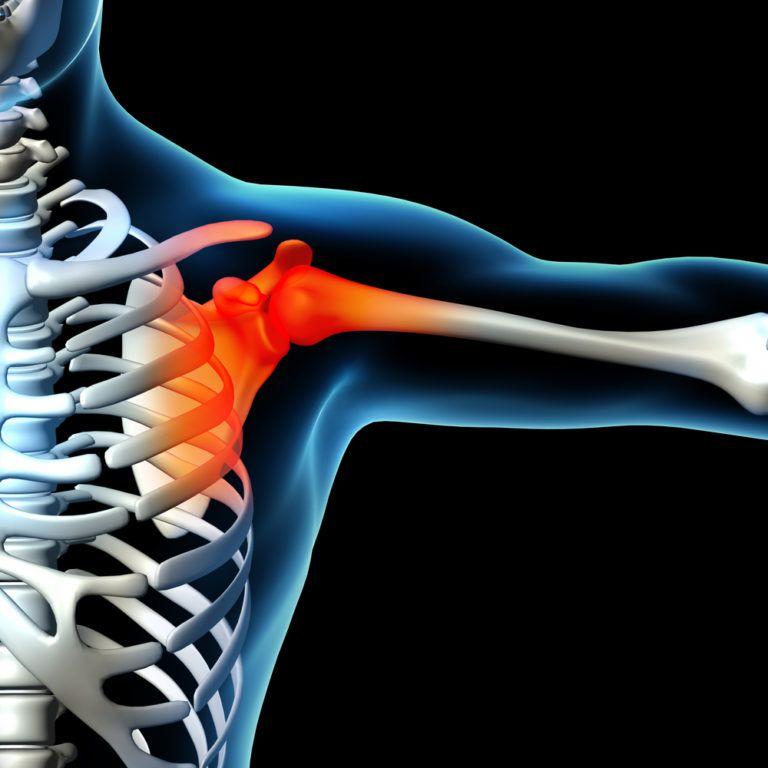 Musculoskeletal Sports Injury