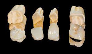 dental restorations for cosmetic dentistry