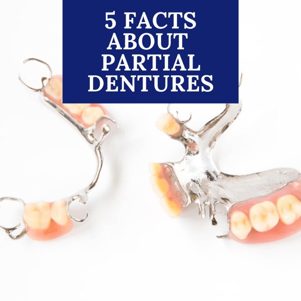 5 Facts About Partial Dentures