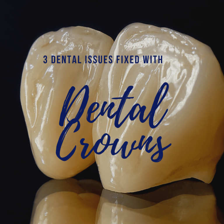 3 Dental Issues Fixed with Dental Crowns
