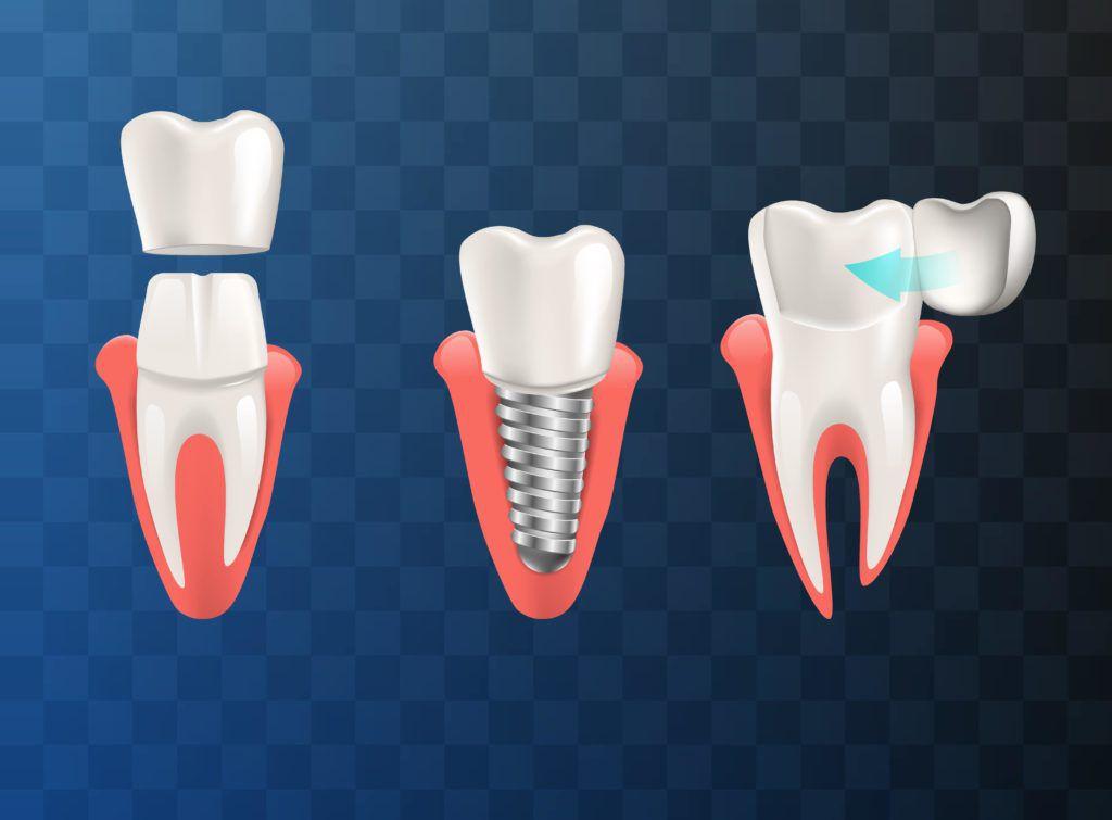 Left to Right: Dental Crown, Dental Implant, Veneer