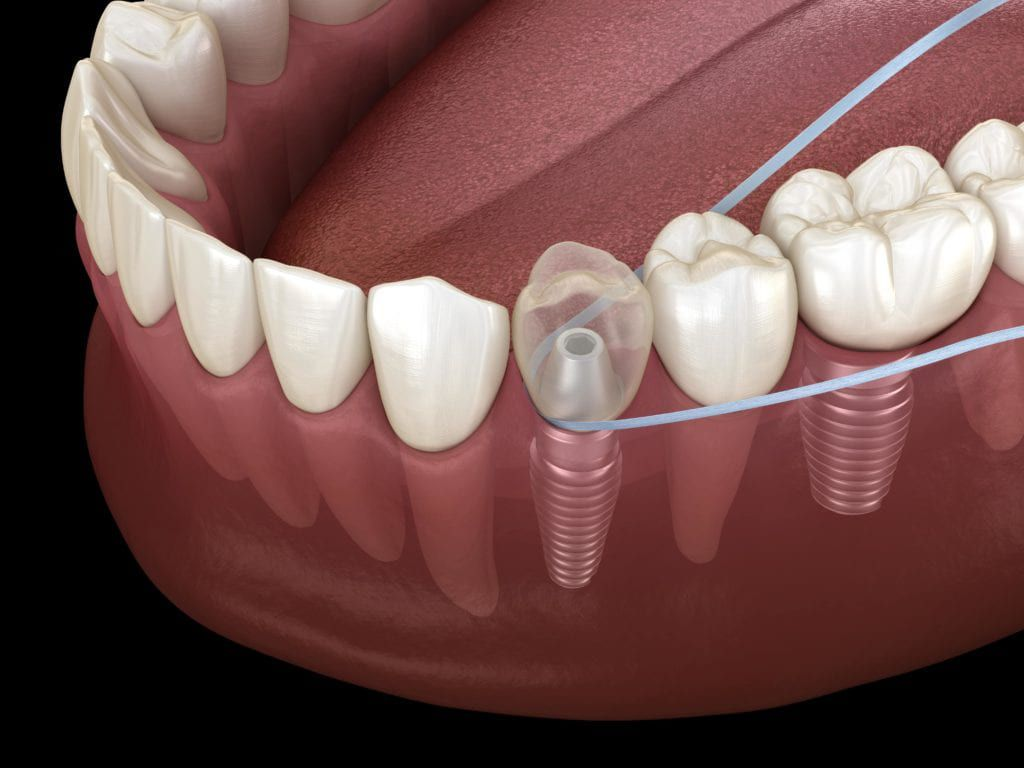 Flossing around implant