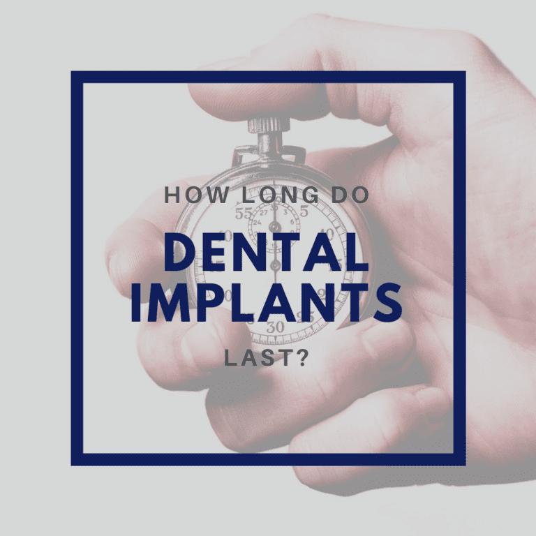 _ How Long Do Dental Implants Last