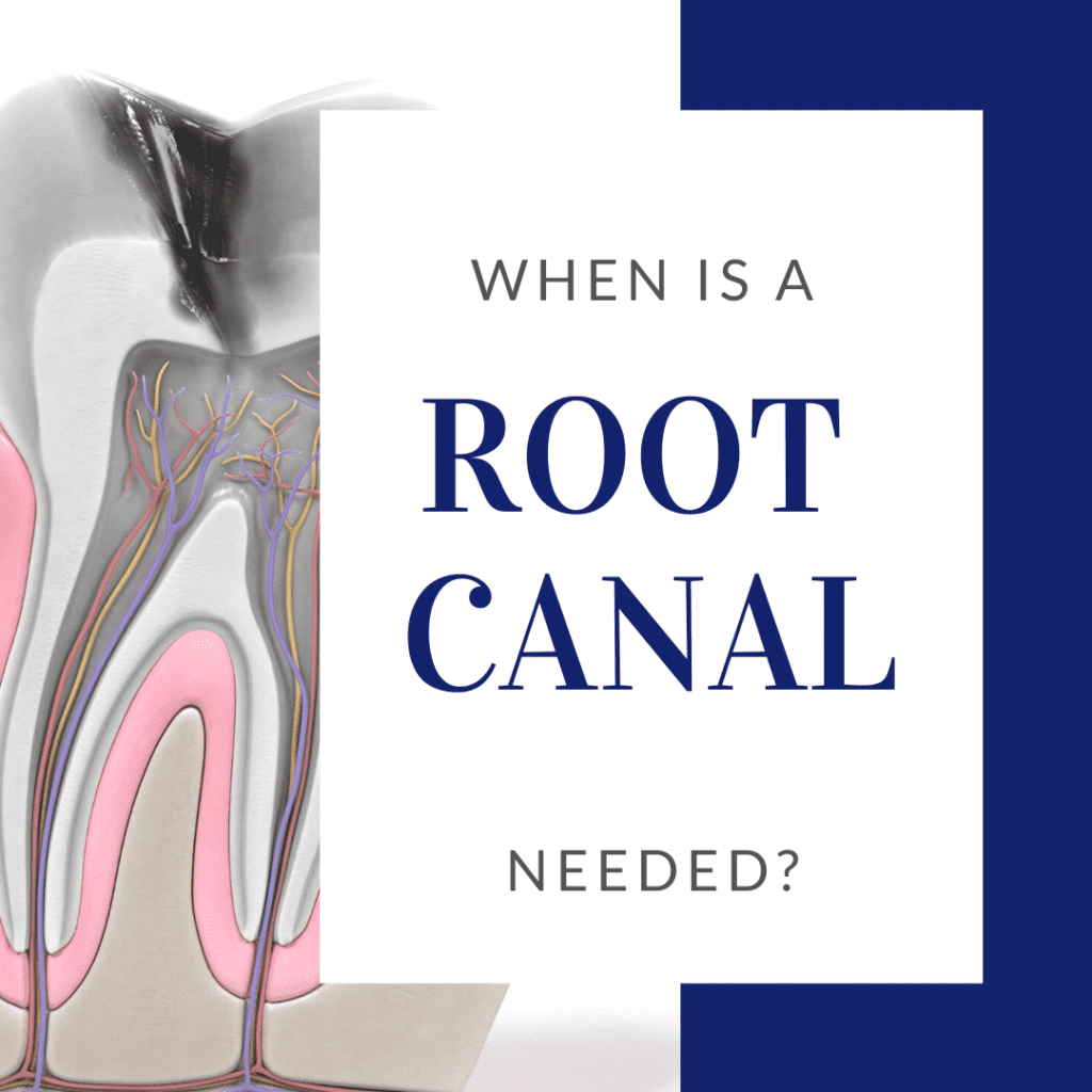 When a Root Canal is Needed?