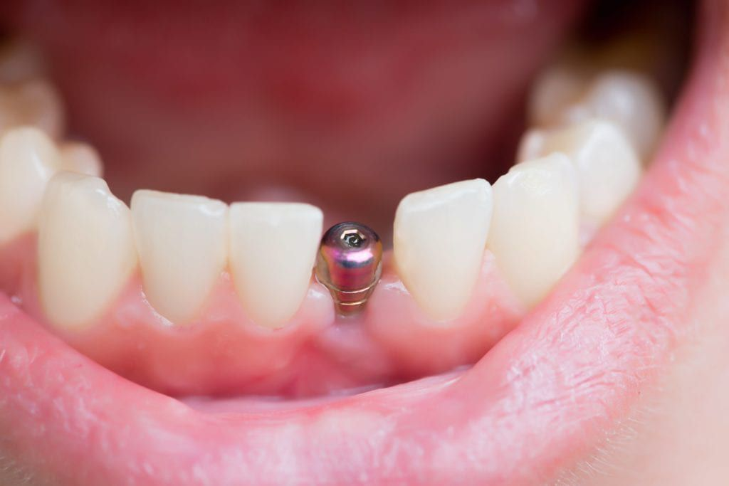 Implant without prosthetic