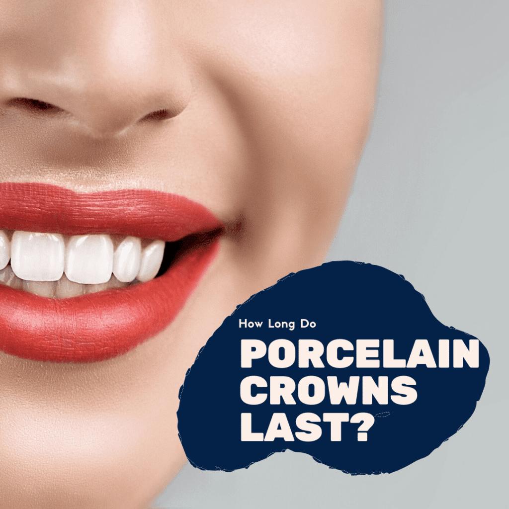 How Long Do Porcelain Crowns Last?