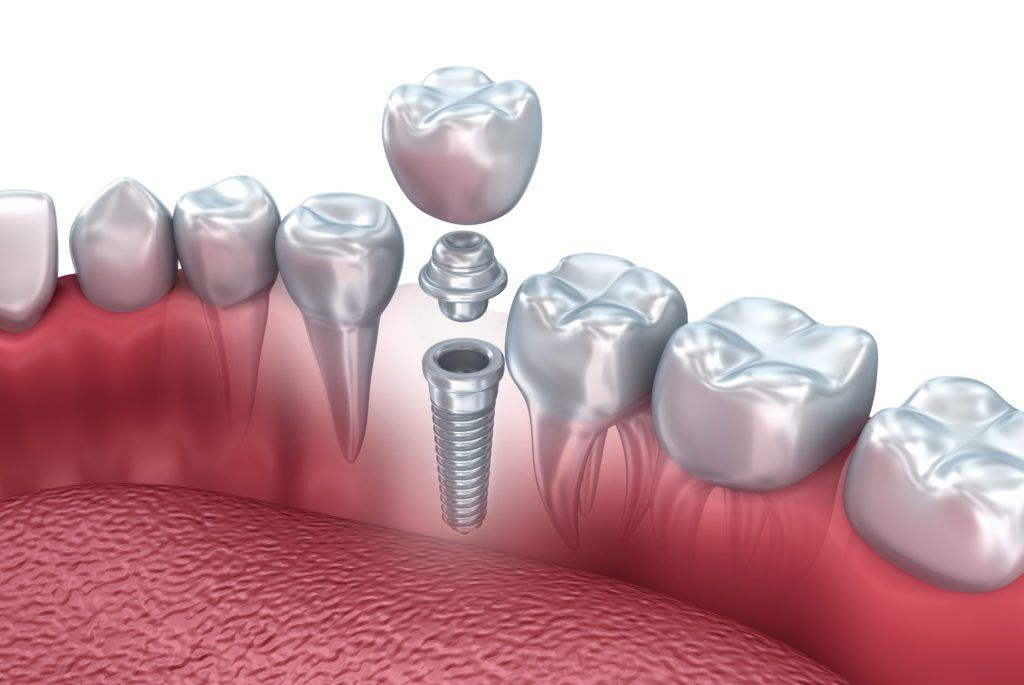 3d image illustrating how a dental implant is anchored into the jaw