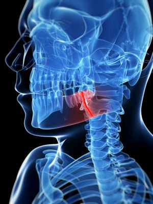 3d x-ray image highlighting in red a jaw fracture to a persons face