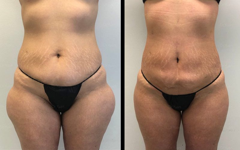 Before After Liposuction And Bbl Pottstown Surgical Clinic Cosmetic Surgery Dr Sean Yuan
