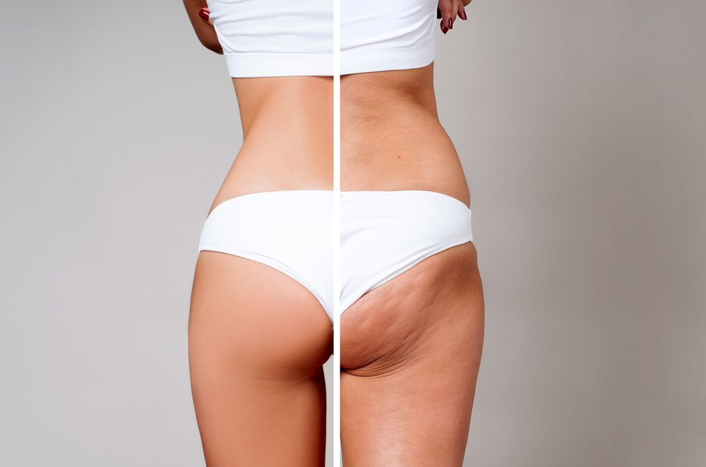 How Long Does It Typically Take To Recover From a Brazilian Butt Lift