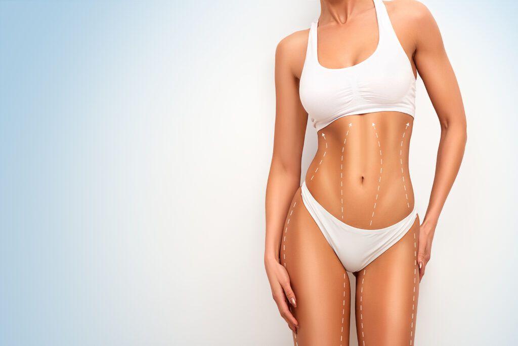 liposuction philadelphia area