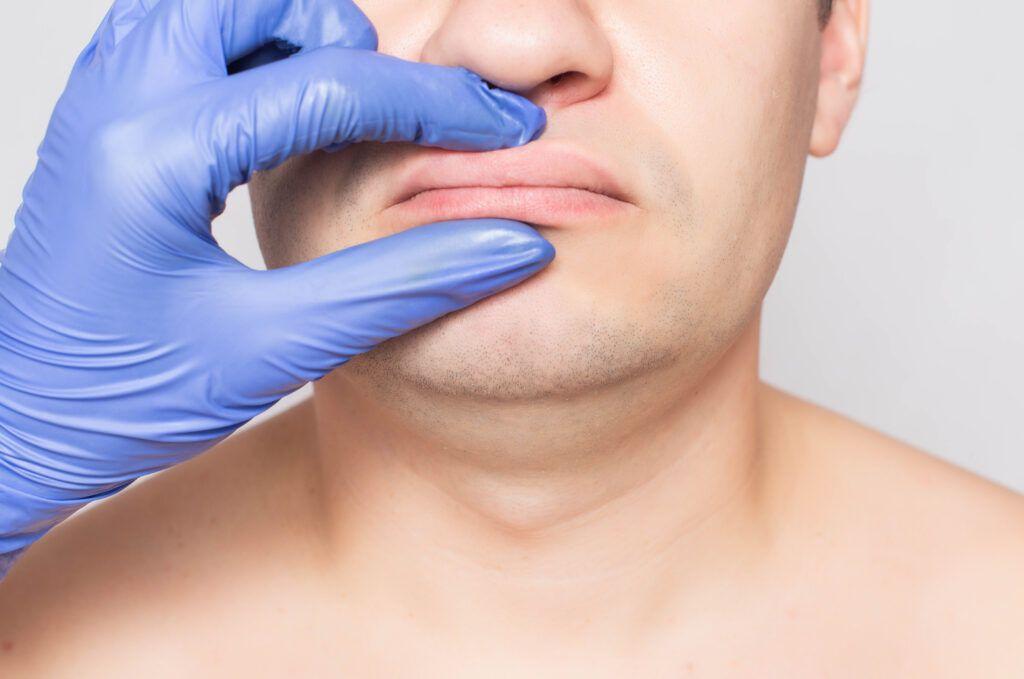 plastic surgery philadelphia