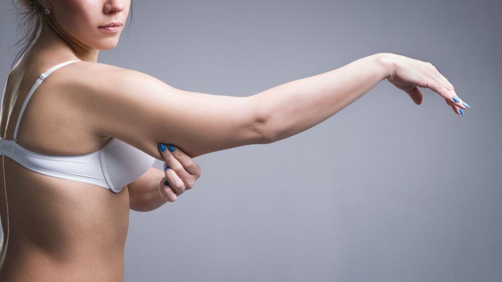 liposuction expert wilmington de