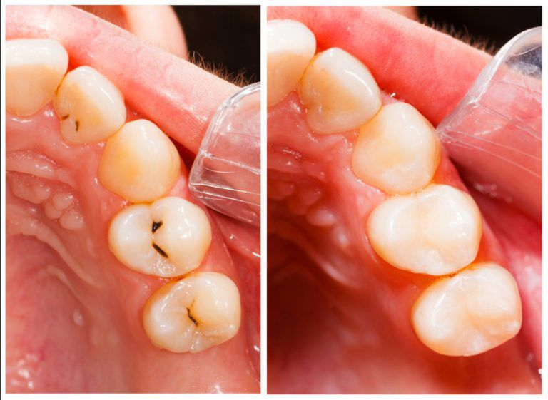 Composite-Tooth-Colored-Fillings
