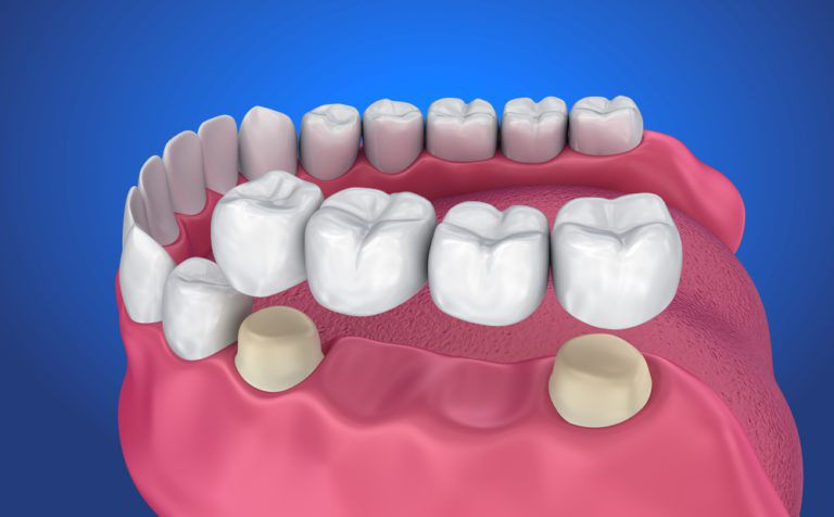 3d illustration of Dental Bridge