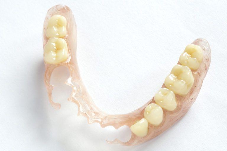 Removable Dentures